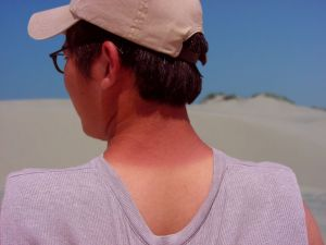 soncne opekline